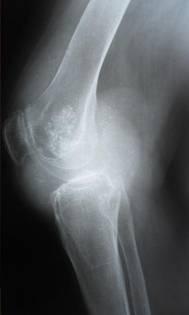 Синовиальный хондроматоз локтевого сустава фото андрей малахов тв народная медицина суставы