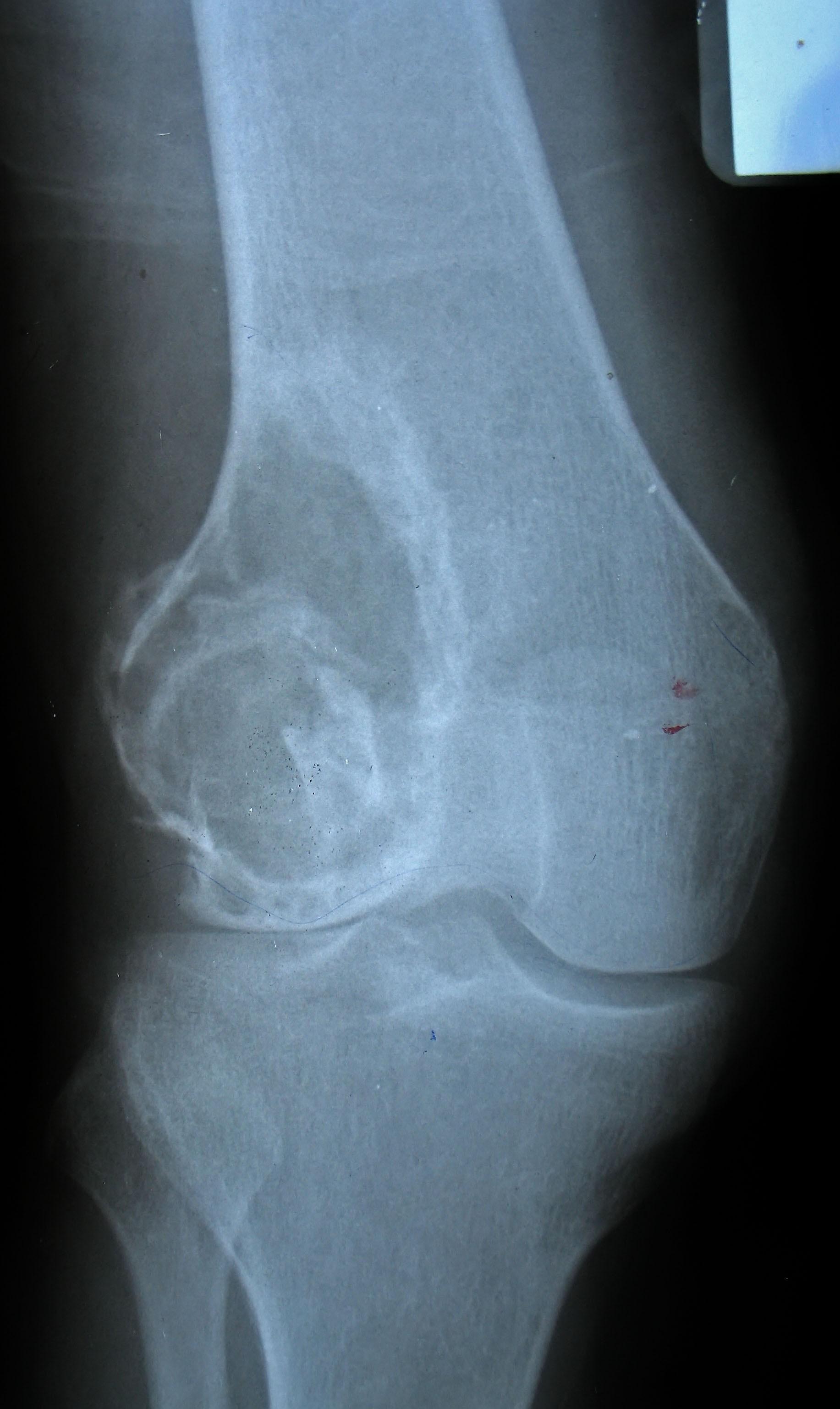 Остеосаркома коленного сустава названия болезней коленного сустава